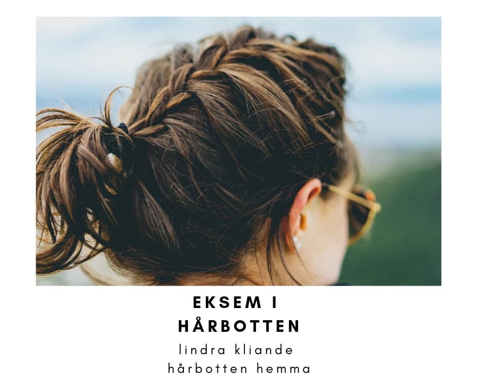 eksem i hårbotten - guide
