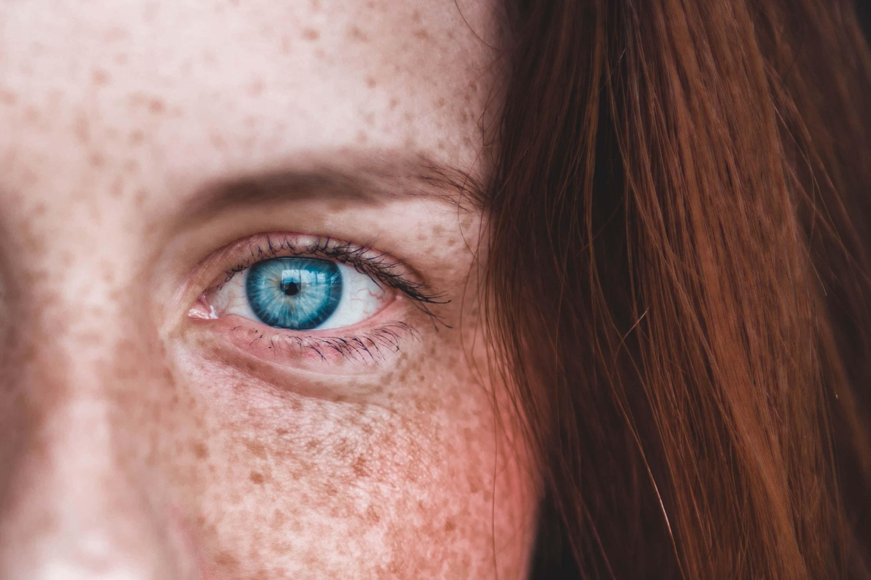 fraknar pigmentforandringar