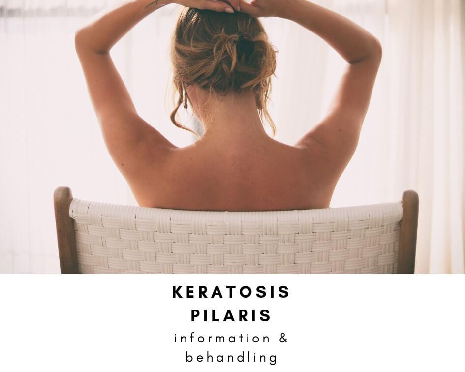 keratosis pilaris behandling information